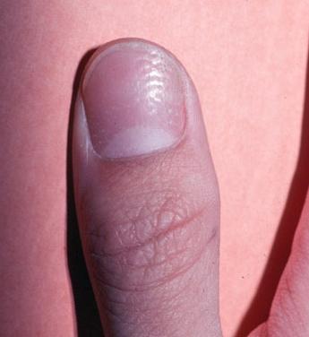 Descrizione: Pitting ungueale: psoriasi, lichen planus, alopecia ...