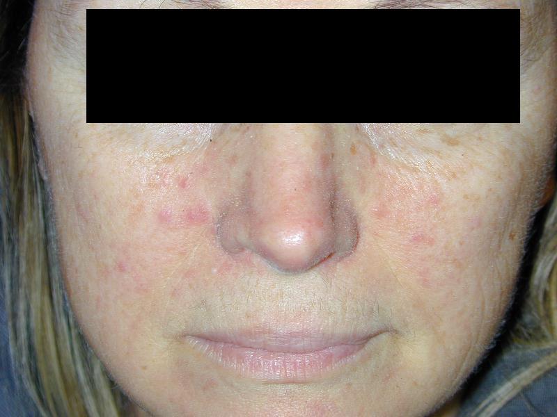 La faccia schiarente bio-toner splendore solubile di risposte della pelle